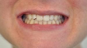 caso clinico prima dello smile design 2